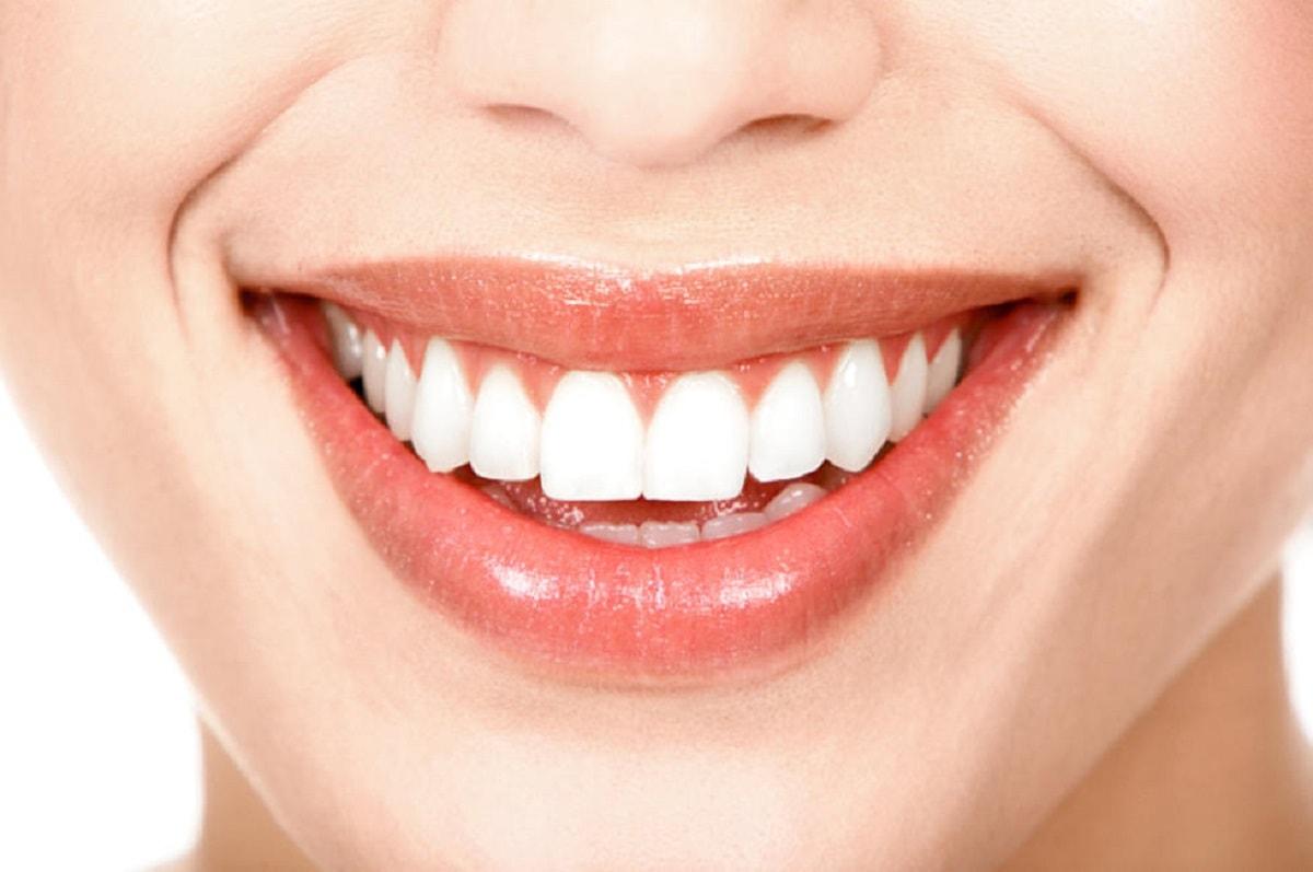 Güzel dişlere sahip olmak için yapılması gerekenler