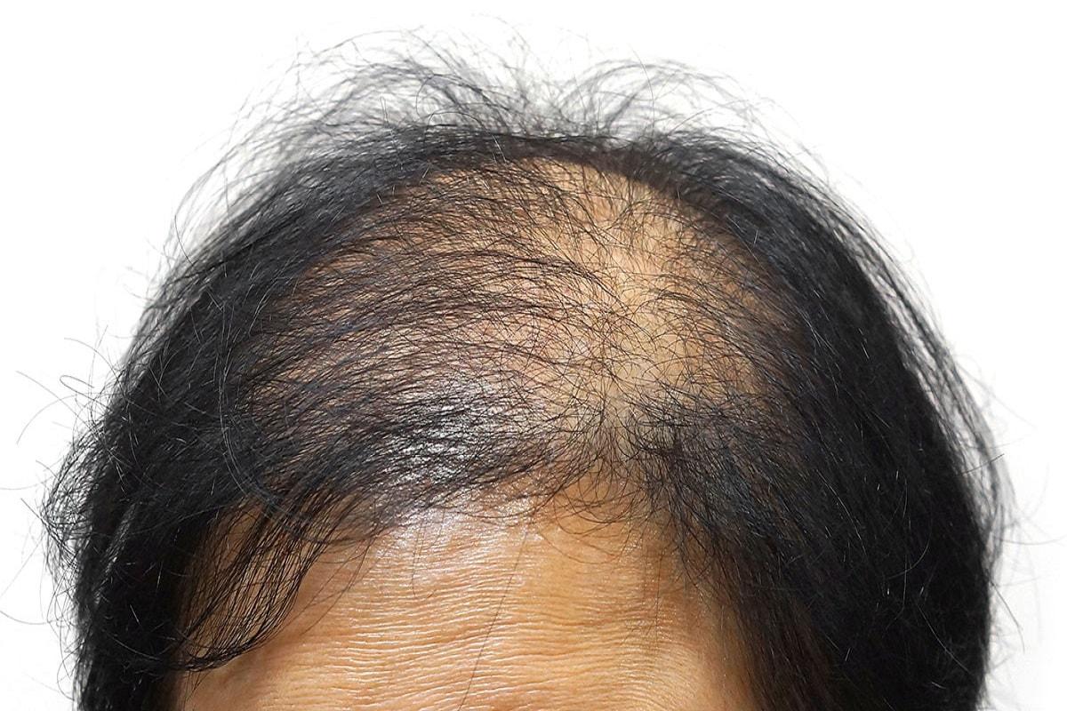 Saç Dökülmesine Yol Açan Hastalıklar