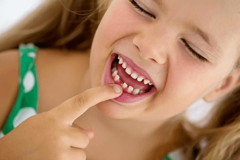 Çocuklarda sık görülen diş sorunları