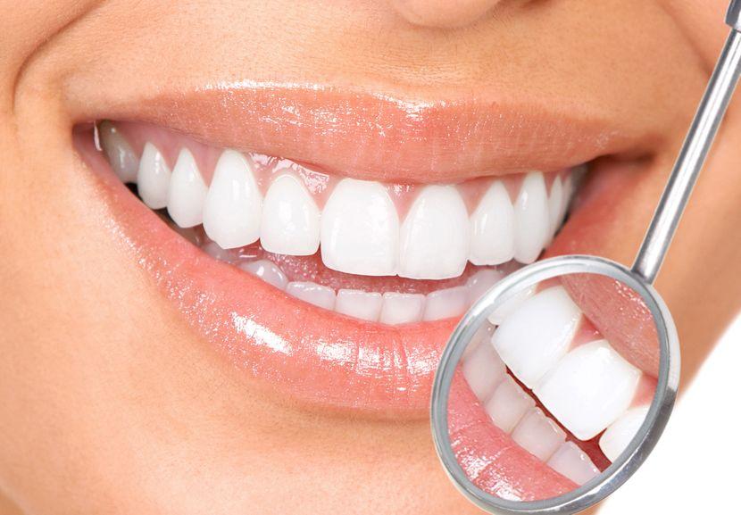 Diş Beyazlatma Yöntemleri Nelerdir?
